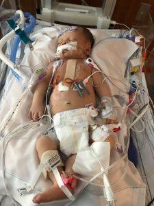 Braxton after surgery